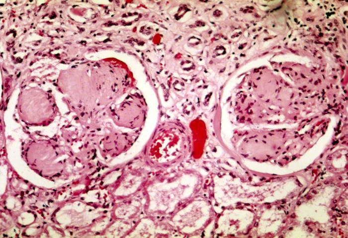 Nodular_glomerulosclerosis